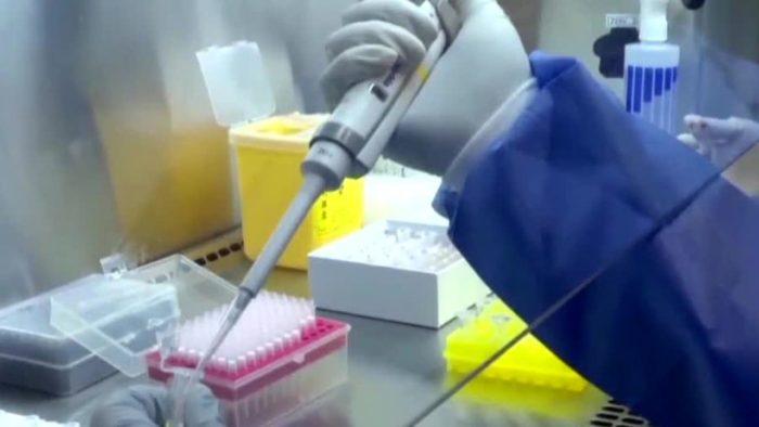 Cali restaurant employee tests positive for coronavirus